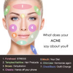 Face Mapping final copyskin care acne face mapping