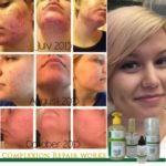 skin care acne
